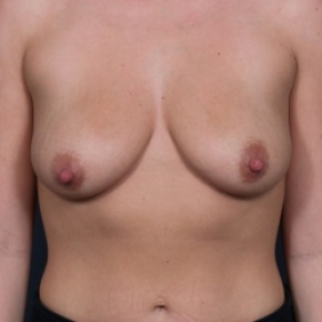 Before Photo - Breast Lift - Case #2721 - Breast Lift (Mastopexy) - Frontal View