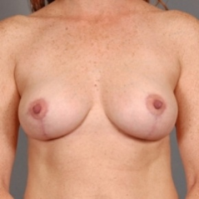After Photo - Breast Lift - Case #2760 - breast lift (mastopexy) - Frontal View