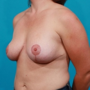 After Photo - Breast Lift - Case #2485 - Oblique View