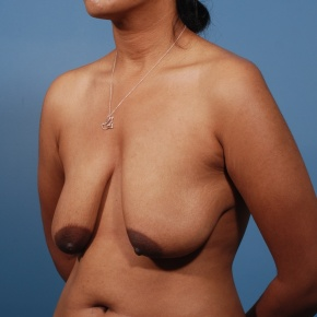 Before Photo - Breast Lift - Case #2781 - Oblique View