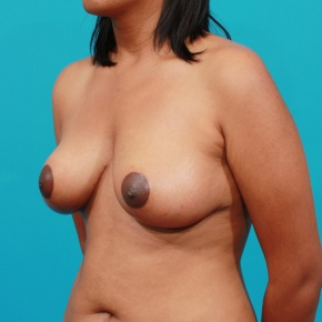 After Photo - Breast Lift - Case #2781 - Oblique View