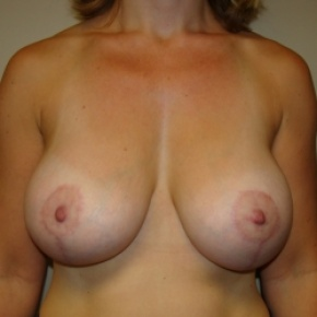 After Photo - Breast Lift - Case #2790 - Frontal View