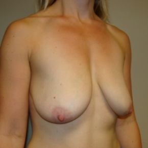 Before Photo - Breast Lift - Case #2790 - Oblique View