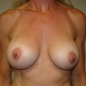 After Photo - Breast Lift - Case #2840 - Frontal View