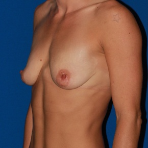 Before Photo - Breast Lift - Case #2784 - Breast Lift- Anchor with silicone breast augmentation - Oblique View