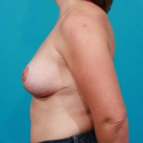 After Photo - Breast Lift - Case #2485 - Lateral View