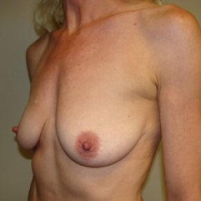 Before Photo - Breast Lift - Case #2840 - Lateral View
