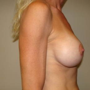 After Photo - Breast Lift - Case #2840 - Posterior Oblique View