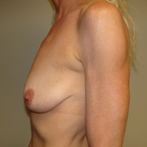 Before Photo - Breast Lift - Case #2840 - Posterior View
