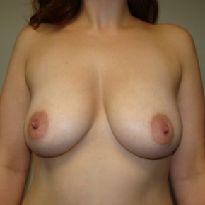 Before Photo - Breast Lift - Case #2841 - Frontal View