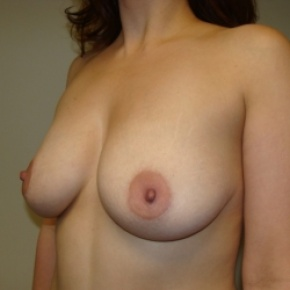 Before Photo - Breast Lift - Case #2841 - Lateral View