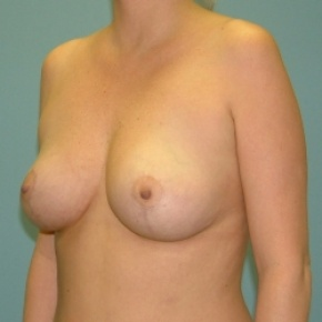 After Photo - Breast Lift - Case #2880 - Bilateral Mastopexy (Breast Lift) - Oblique View