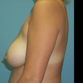 Before Photo - Breast Lift - Case #2880 - Bilateral Mastopexy (Breast Lift) - Lateral View