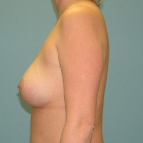 After Photo - Breast Lift - Case #2880 - Bilateral Mastopexy (Breast Lift) - Lateral View