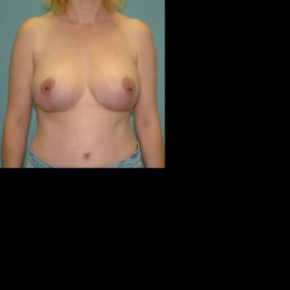 After Photo - Breast Lift - Case #2881 - Bilateral Mastopecy with Implant placement - Frontal View