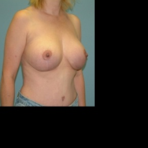 After Photo - Breast Lift - Case #2881 - Bilateral Mastopecy with Implant placement - Oblique View
