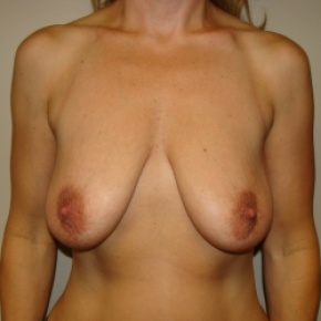 Before Photo - Breast Lift - Case #2894 - Mastopexy - Frontal View