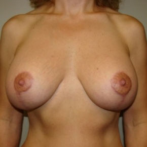 After Photo - Breast Lift - Case #2894 - Mastopexy - Frontal View