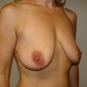 Before Photo - Breast Lift - Case #2894 - Mastopexy - Oblique View