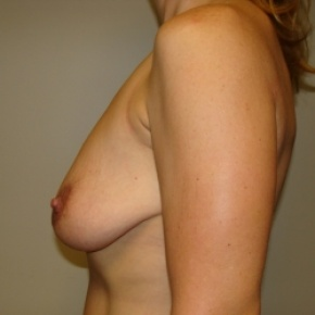 Before Photo - Breast Lift - Case #2894 - Mastopexy - Posterior View