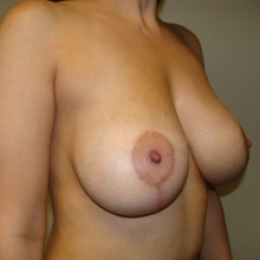 After Photo - Breast Lift - Case #2895 - Frontal View