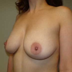 Before Photo - Breast Lift - Case #2895 - Lateral View