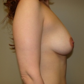 Before Photo - Breast Lift - Case #2895 - Posterior Oblique View