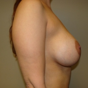 After Photo - Breast Lift - Case #2895 - Posterior Oblique View
