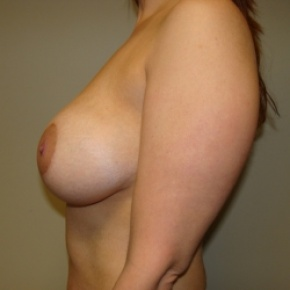 After Photo - Breast Lift - Case #2895 - Posterior View