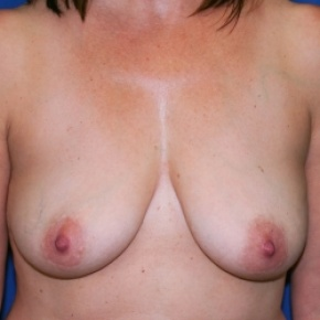 Before Photo - Breast Lift - Case #2944 - Hypomastia, Asymmetry, Ptosis - Frontal View