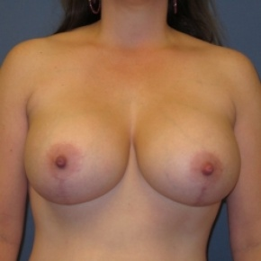 After Photo - Breast Lift - Case #2947 - Breast Lift with Augmentation - Frontal View