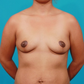 After Photo - Breast Lift - Case #2963 - Asymmetric Breast Lift - Frontal View
