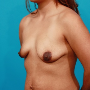 Before Photo - Breast Lift - Case #2963 - Asymmetric Breast Lift - Oblique View