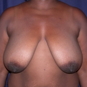 Before Photo - Breast Reduction - Case #2517 - Bilateral Breast Reduction - Frontal View