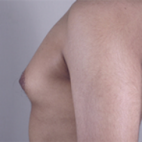 Before Photo - Gynecomastia - Case #2930 - Gynecomastia New Jersey - Lateral View