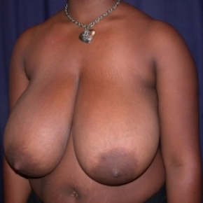 Before Photo - Breast Reduction - Case #2518 - Bilateral Breast Reduction - Posterior Oblique View