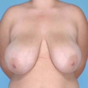 Before Photo - Breast Reduction - Case #2711 - Frontal View