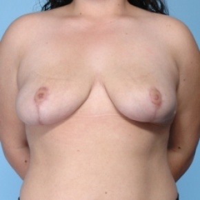 After Photo - Breast Reduction - Case #2711 - Frontal View