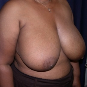 Before Photo - Breast Reduction - Case #2519 - Bilateral Breast Reduction - Oblique View