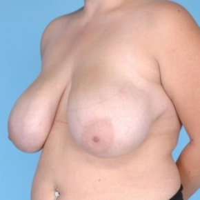 Before Photo - Breast Reduction - Case #2711 - Oblique View