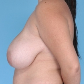 Before Photo - Breast Reduction - Case #2711 - Lateral View
