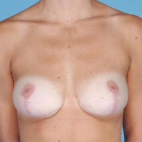 After Photo - Breast Reduction - Case #2713 - Bilateral Breast Reduction  - Frontal View
