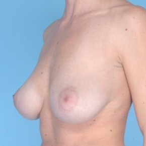 Before Photo - Breast Reduction - Case #2713 - Bilateral Breast Reduction  - Oblique View