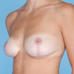 After Photo - Breast Reduction - Case #2713 - Bilateral Breast Reduction  - Oblique View