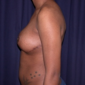 After Photo - Breast Reduction - Case #2520 - Bilateral Breast Reduction - Lateral View