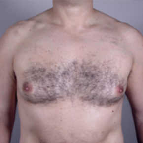 Before Photo - Gynecomastia - Case #2931 - Gynecomastia New Jersey - Frontal View