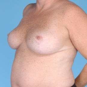 After Photo - Breast Reduction - Case #2714 - Bilateral Breast Reduction  - Oblique View