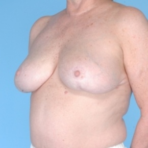 After Photo - Breast Reduction - Case #2715 - Bilateral Breast Reduction  - Oblique View
