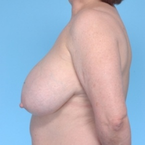 Before Photo - Breast Reduction - Case #2715 - Bilateral Breast Reduction  - Lateral View