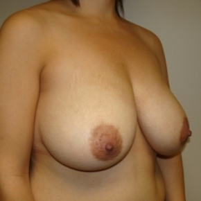Before Photo - Breast Reduction - Case #2776 - Oblique View